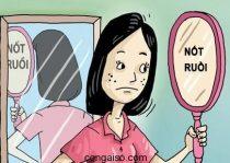 not-ruoi-bao-hieu-tuong-so