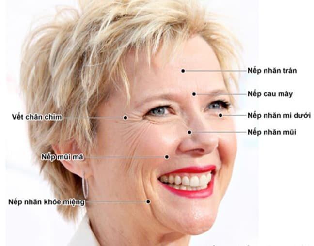 tiem-botox-filler-co-tot-khong-2