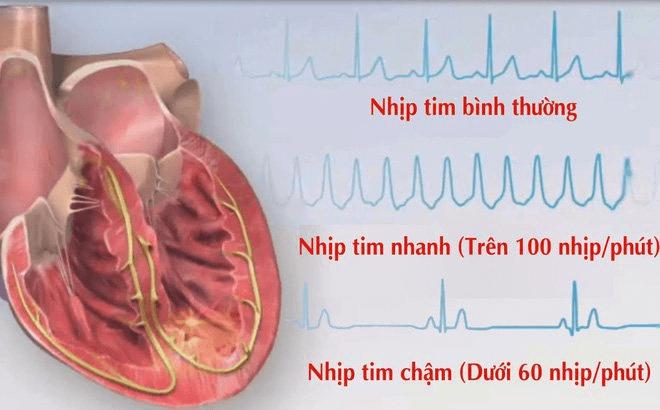 Bảng theo dõi nhịp tim?