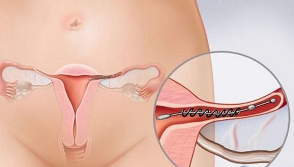 Vòng tránh thai phù hợp với đa số cơ địa của phụ nữ