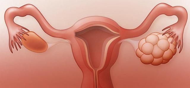 Hội chứng đa nang buồng trứng thường xuất ở những phụ nữ đang trong độ tuổi sinh sản