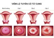 Ba cấp độ của bệnh viêm lộ tuyến cổ tử cung