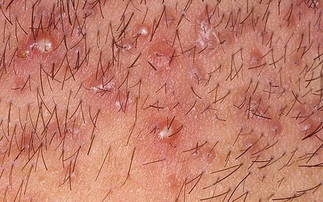 Dấu hiệu viêm nang lông vùng lông mu