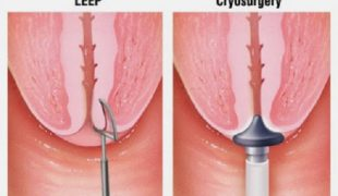 Điều trị viêm lộ tuyến cổ tử cung độ 3 bằng dao Leep