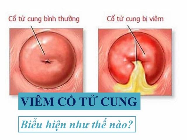 Để ý các dấu hiệu bất thường của cổ tử cung