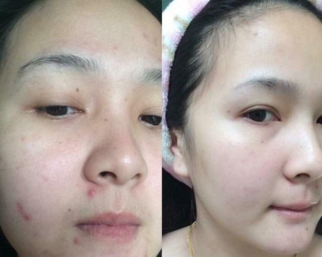 Sử dụng thuốc tránh thai hàng ngày có thể cải thiện tình trạng da mặt của bạn tốt hơn.