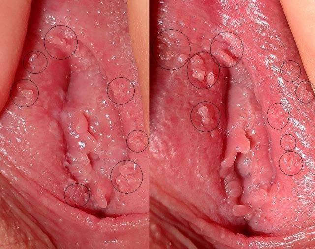 Sùi mào gà là một trong những bệnh xã hội mang lại hậu quả khó lường cho người bệnh.